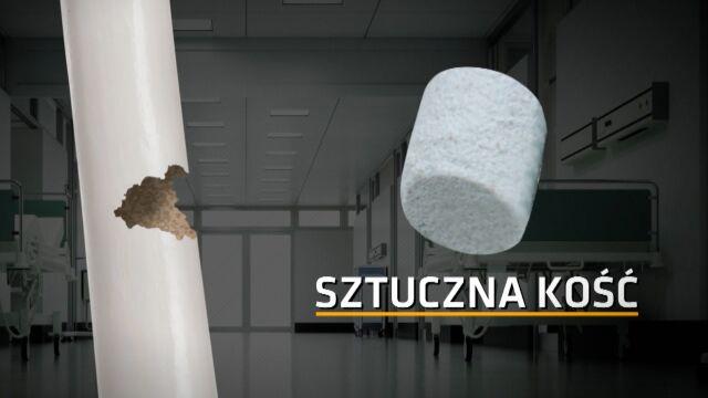 """""""Sztuczna kość staje się prawdziwą"""". Medyczny wynalazek z Lublina"""
