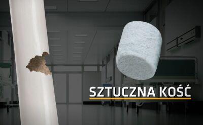 Sztuczna kość z Lublina