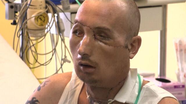 Pacjent po przeszczepie twarzy robi wielkie postępy. Kamera TVN24 na oddziale