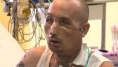 Pan Grzegorz po przeszczepie twarzy robi niewiarygodne postępy
