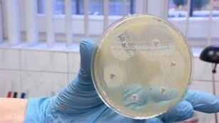 Rosnący problem odporności na antybiotyki. Lekarze apelują